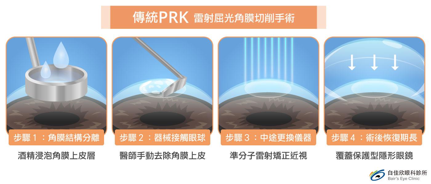 傳統PRK雷射屈光角膜切削手術-台中近視雷射白佳欣眼科