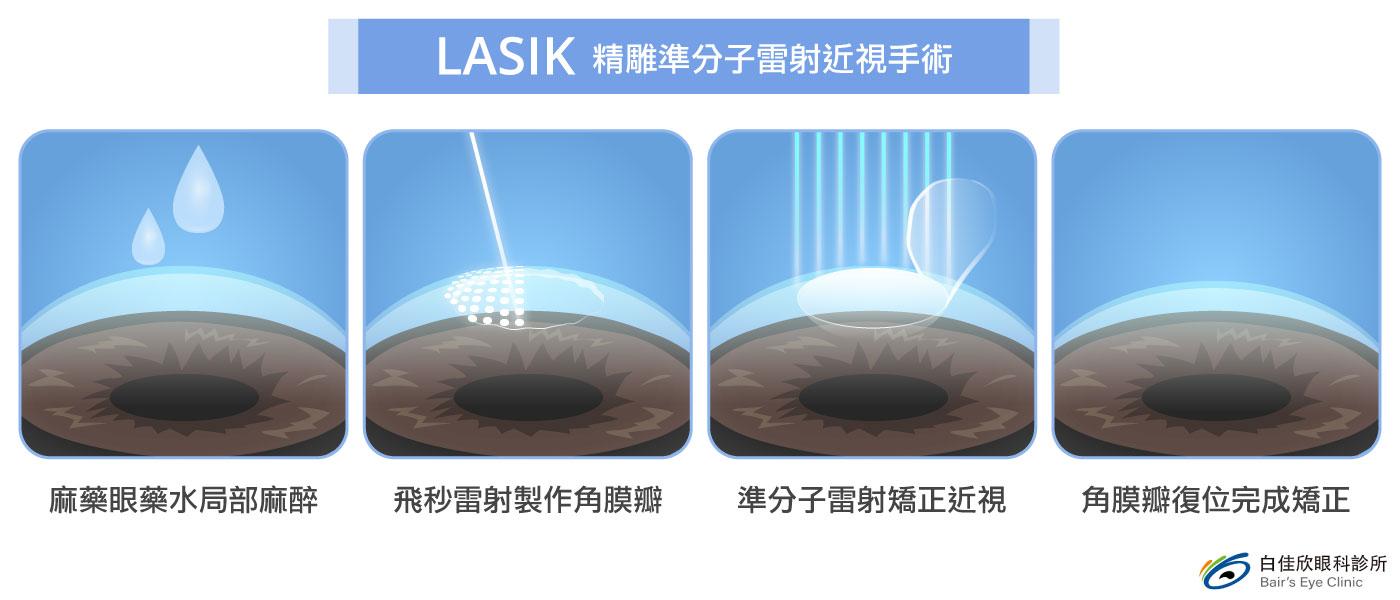 台中白佳欣眼科診所LASIK精雕準分子雷射近視手術