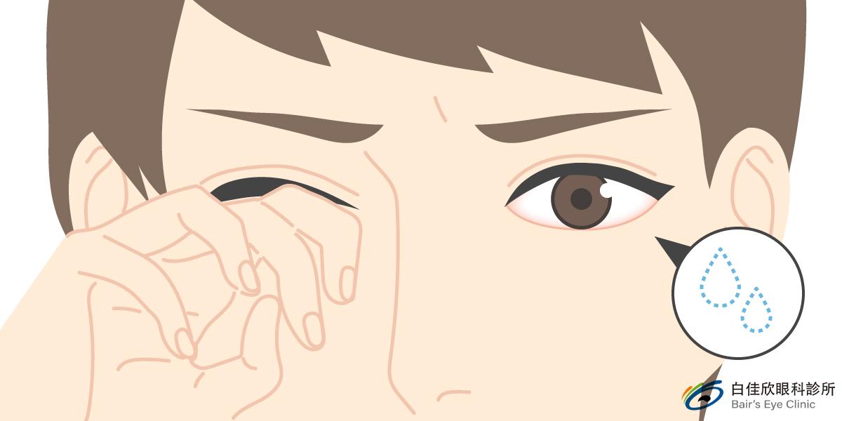 台中白佳欣眼科診所眼睛乾澀示意圖