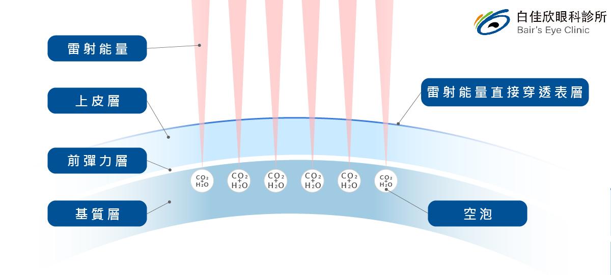 台中白佳欣眼科診所-smile製作角膜透鏡過程