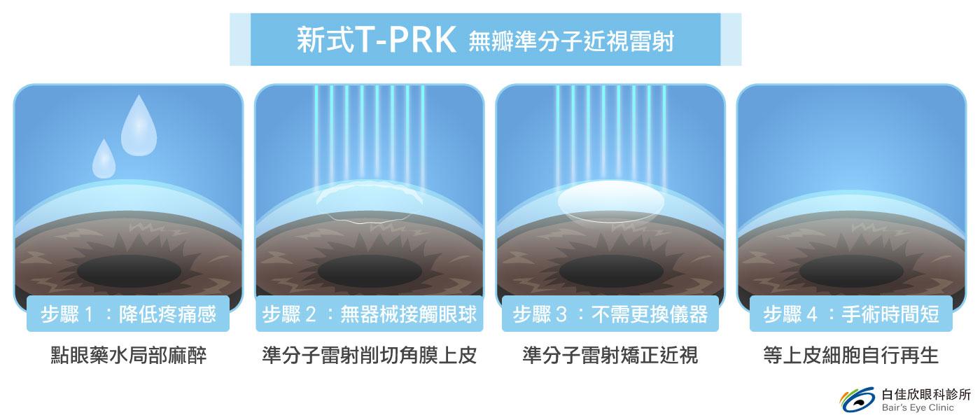 新式T-PRK 無瓣準分子近視雷射-台中近視雷射白佳欣眼科