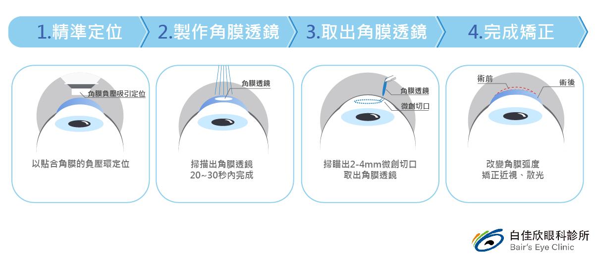 台中白佳欣眼科診所-SMILE全飛秒雷射