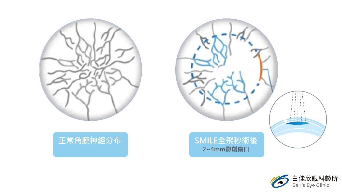 台中白佳欣診所-smile術後神經圖